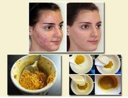 Công thức 1: Mặt nạtinh bột nghệ đắp mặt với mật ong